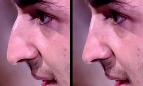 Иосиф Оганесян готовиться к пластике носа