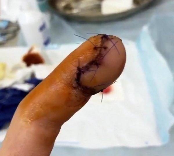 Роман Капаклы рассказал как прошла операция